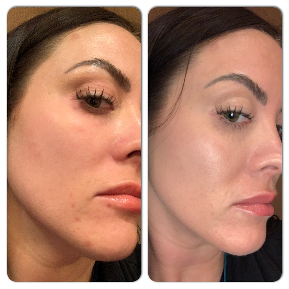 Melasma Treatment Before & After Duluth, MN