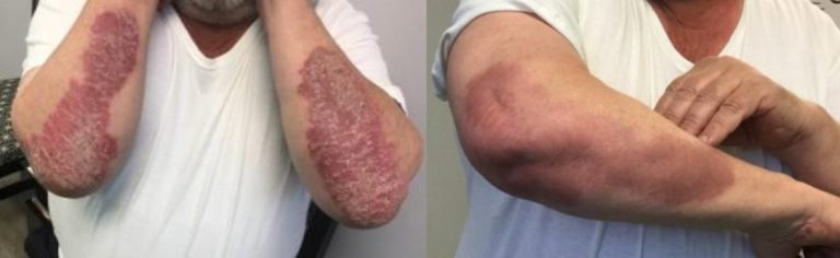 Duluth Xtrac Psoriasis Treatment