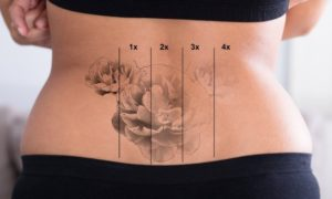 Laser Tattoo Removal Duluth